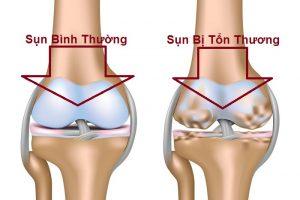 Bệnh lao xương khớp và nguy cơ gây tàn phế