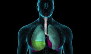 Tiến trình nCoV hủy hoại phổi