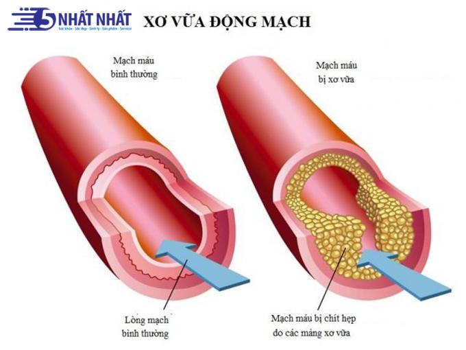 xo-vua-dong-mach-thieu-mau-nao