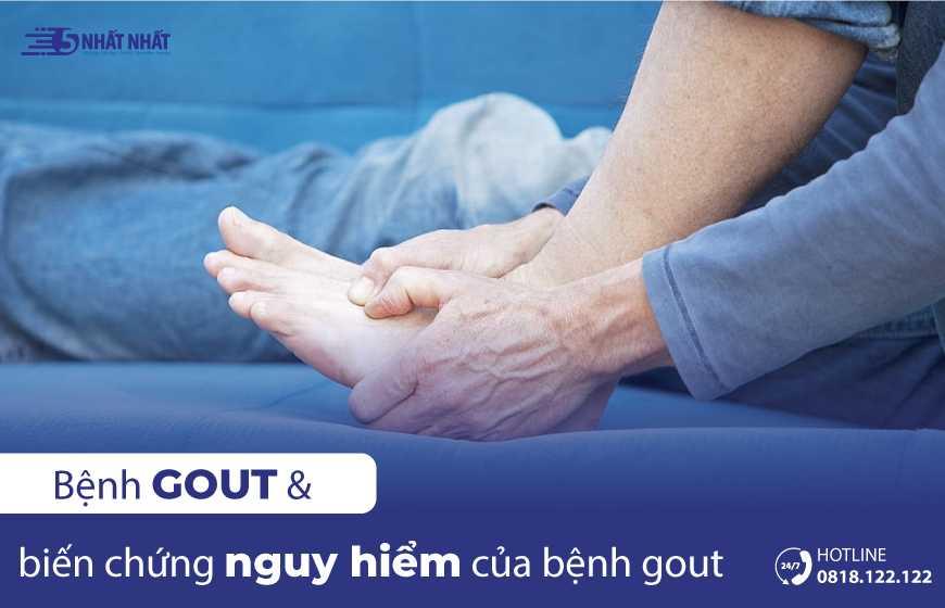 Bệnh Gout và những biến chứng nguy hiểm của bệnh Gout